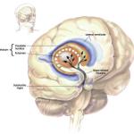 20151120_causes-cerveau